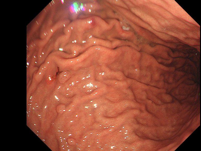 胃底線ポリープ