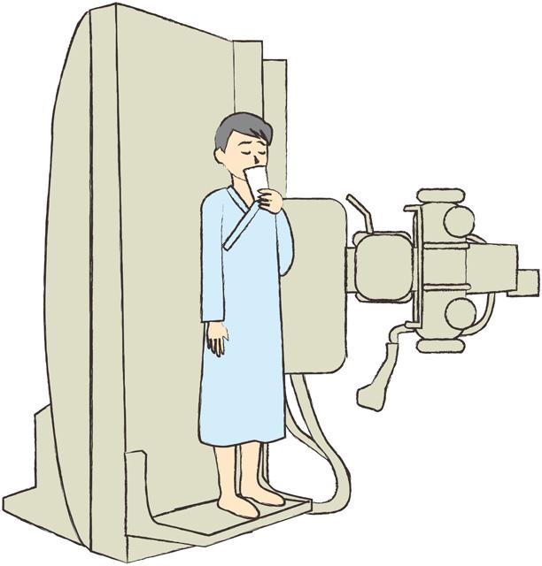 バリウム検査